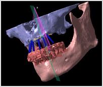 骨移植外科シュミレーション