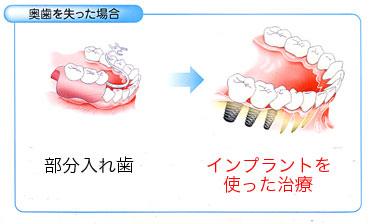 すべての歯を失った場合